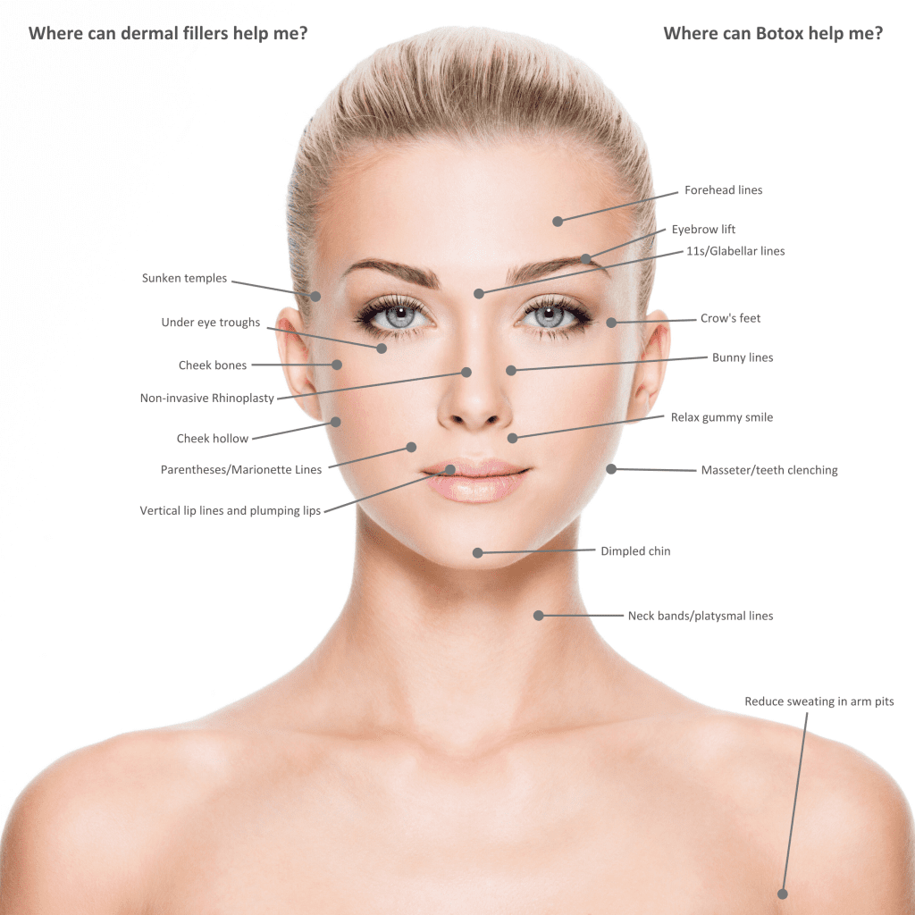 juvederm treatment options in bend oregon